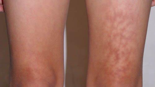Queimadura na perna ocasionada por notebook